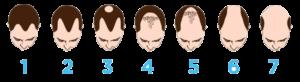 graus da perda da fios de cabelo