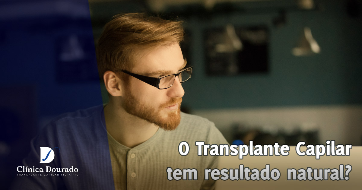 o transplante capilar tem resultado natural