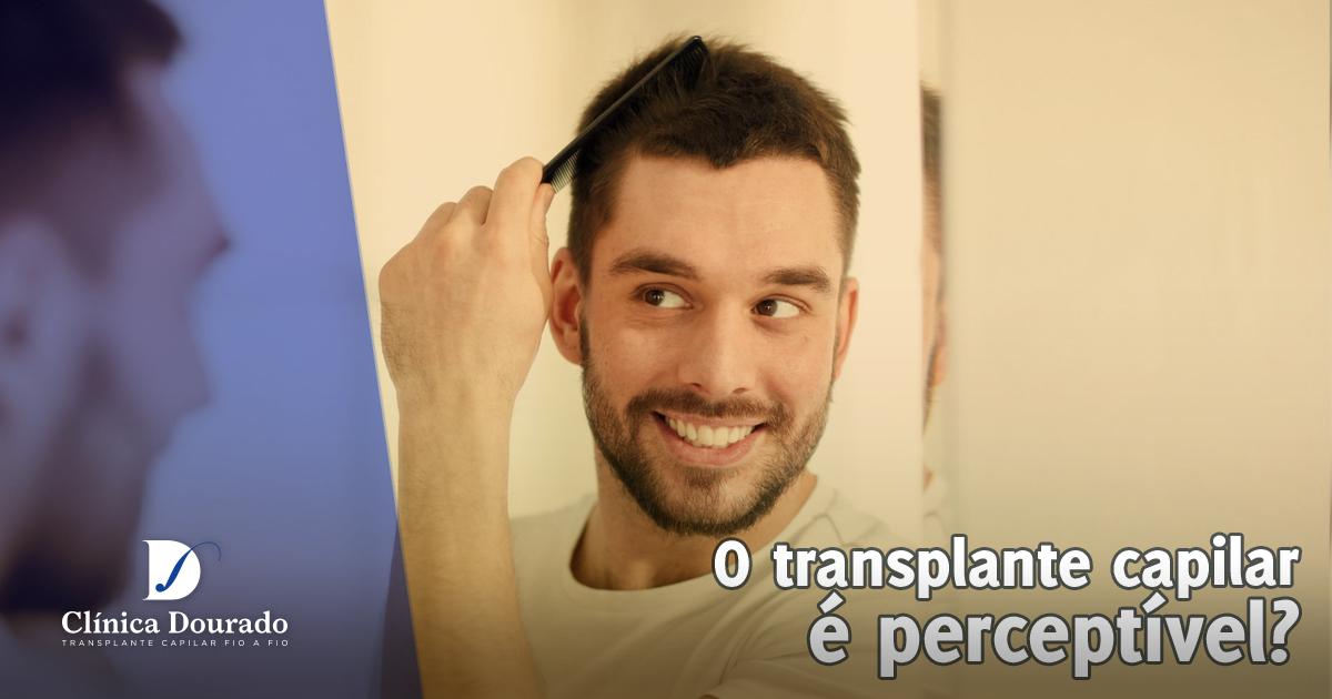 transplante capilar é perceptivel