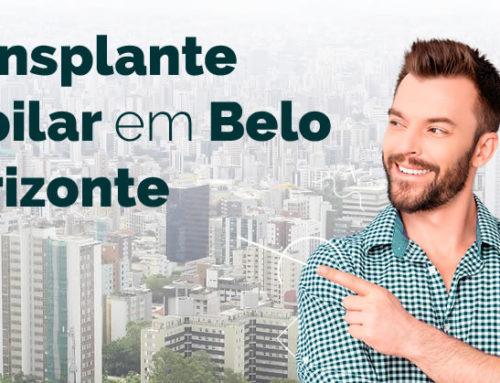 Transplante Capilar no bairro Lourdes Belo Horizonte