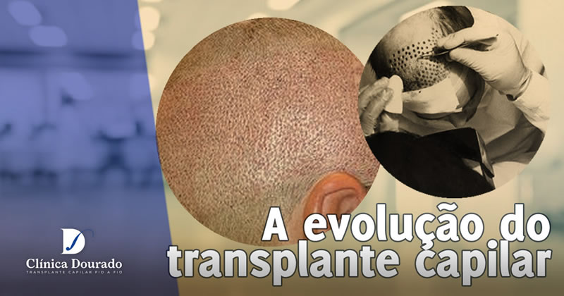 A evolução do transplante capilar