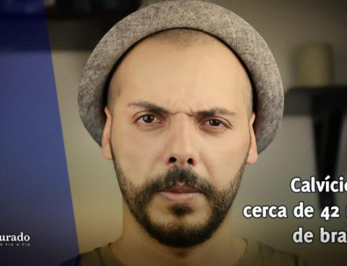 Calvície atinge cerca de 42 milhões de brasileiros!
