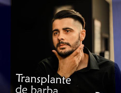 Transplante de barba em Belo Horizonte