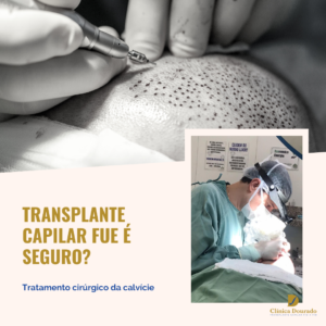 transplante capilar FUE é seguro?
