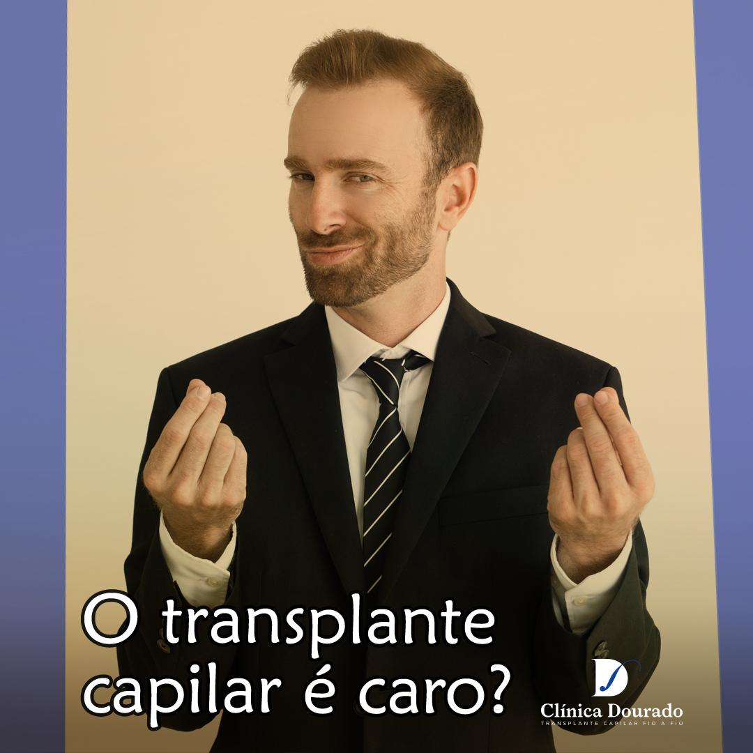 o transplante capilar é caro?