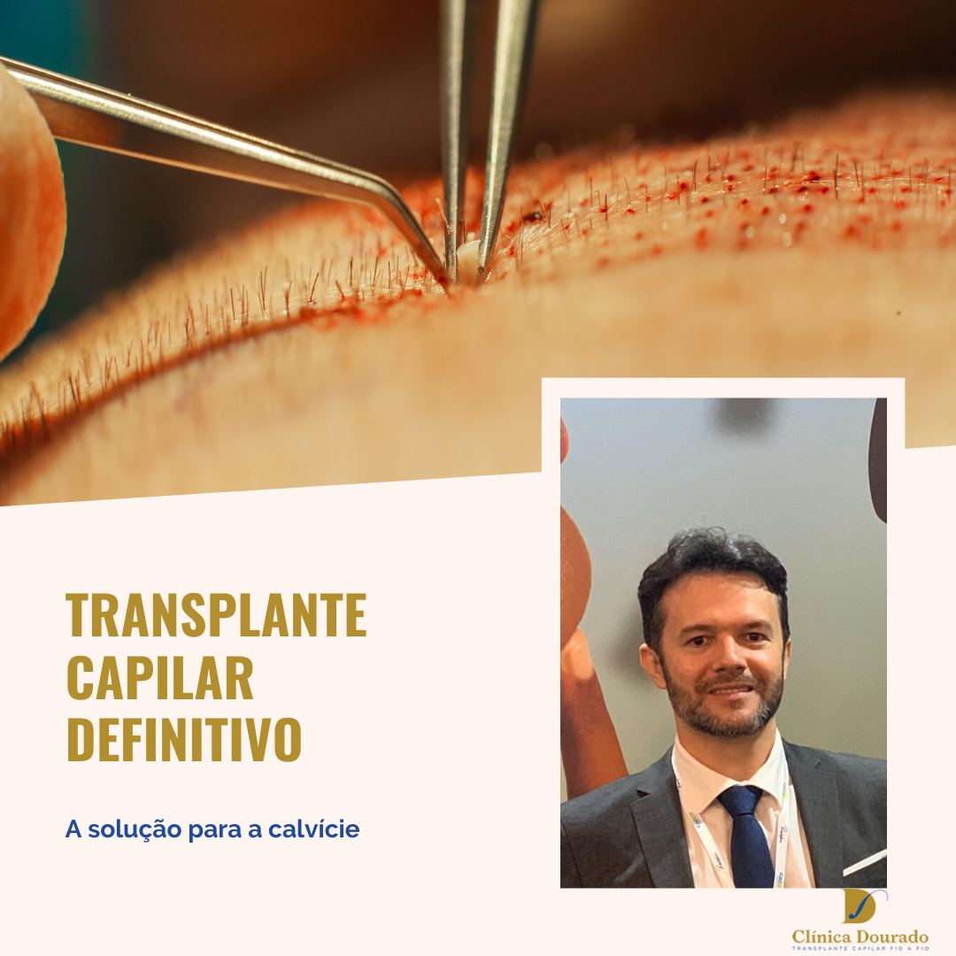 transplante capilar definitivo