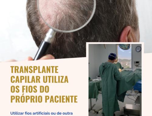 Transplante capilar utiliza fios do próprio paciente