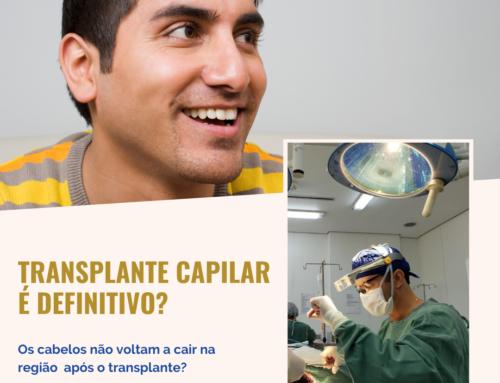 Transplante capilar é definitivo?