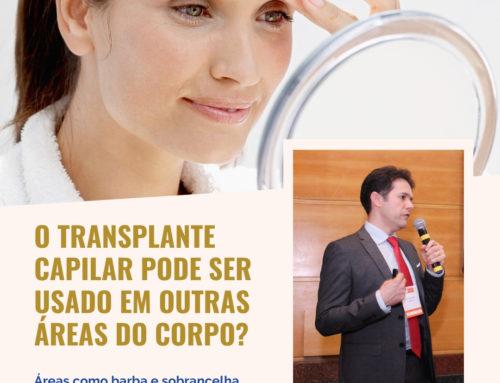 O transplante capilar pode ser realizado em outras áreas do corpo?