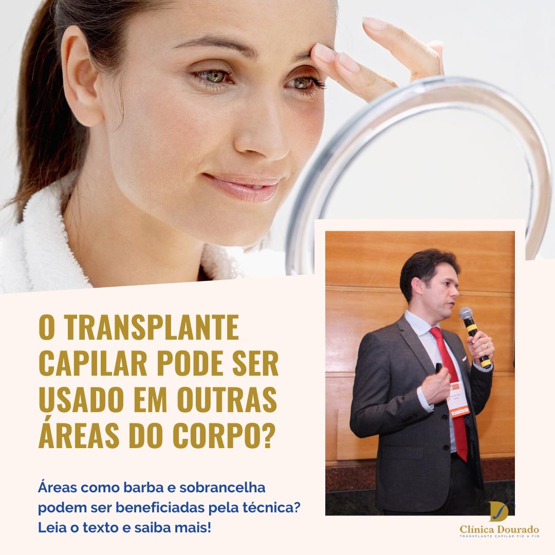 O transplante capilar pode ser usado em outras áreas do corpo