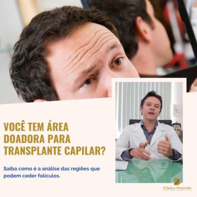 você tem área doadora para transplante capilar