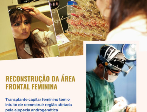 Reconstrução da parte frontal do cabelo feminino