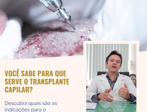 Você sabe para que serve o transplante capilar?⠀