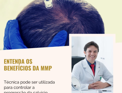 Entenda os benefícios da MMP