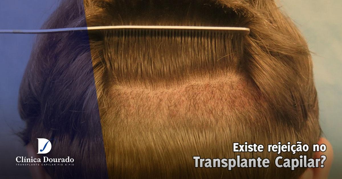 Rejeição no Implante Capilar