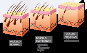 foliculo capilar
