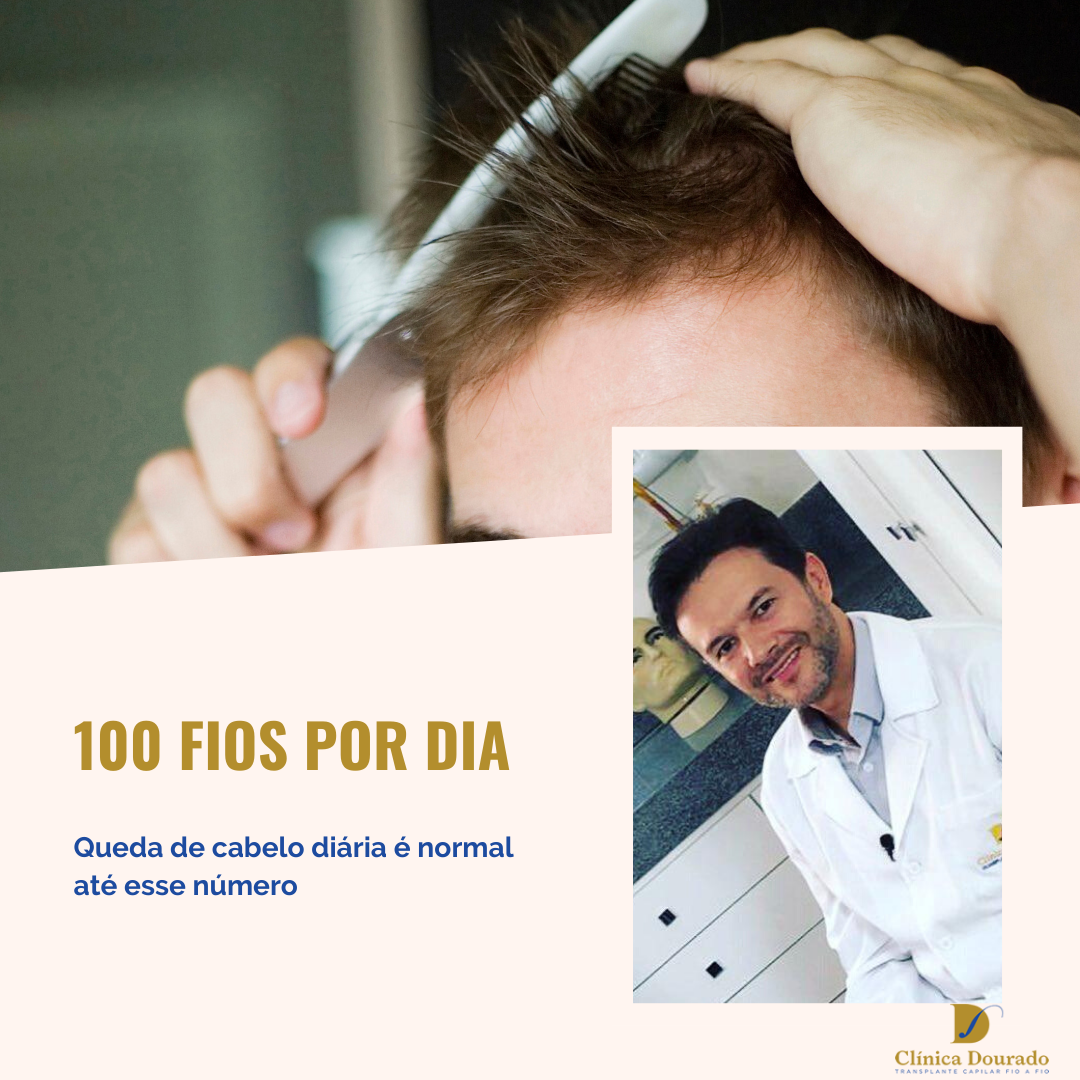 100 fios por dia