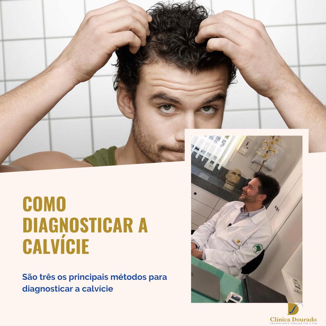 como diagnosticar a calvície