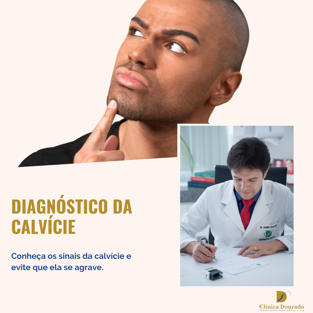 diagnostico da calvicie