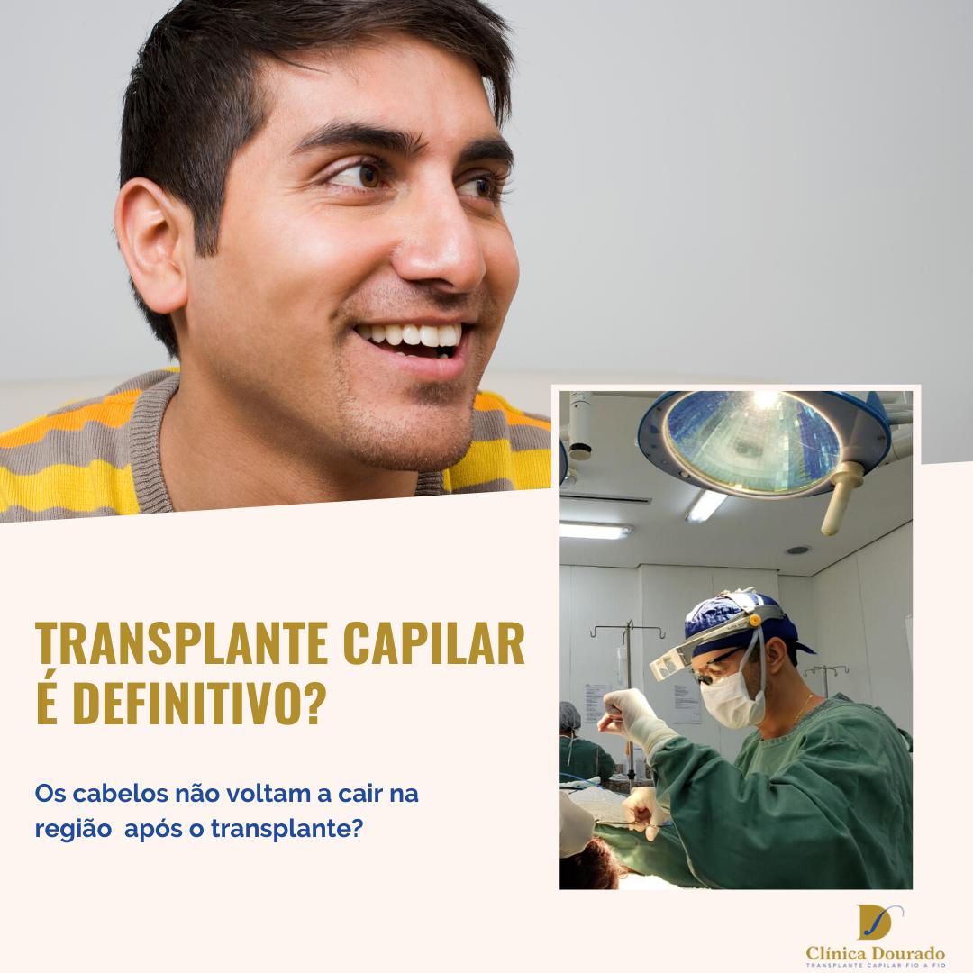 transplante capilar é definitivo